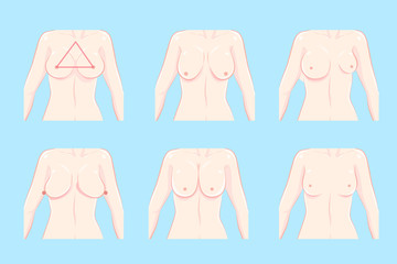 cartoon different chest shape