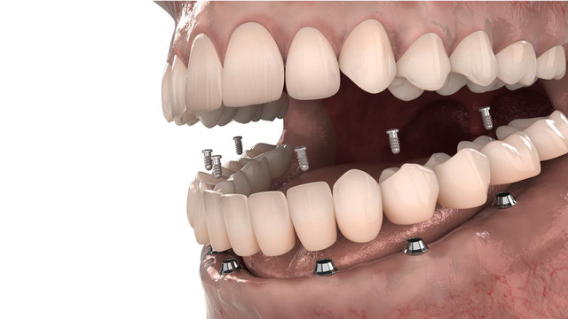 Dental anatomy - Lower jaw implant overdenture