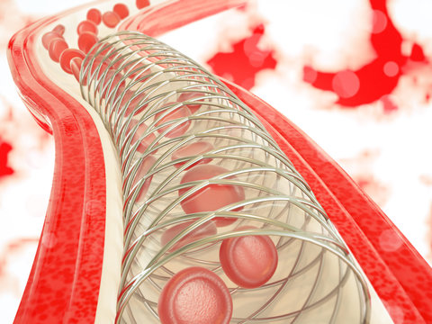 Angioplasty with stent placement- 3D rendering