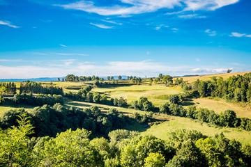 Vue sur la campagne autour du village de Laguiole