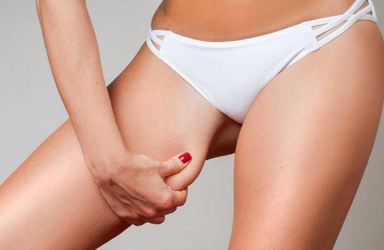 Woman grabbing skin on her leg. Cellulite fat removal skin.