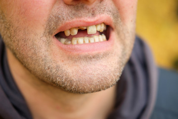 problems with teeth men of the European race