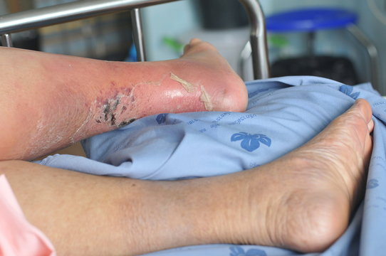 The feet of people with diabetes, dull and swollen. Due to the toxicity of diabetes, ulceration