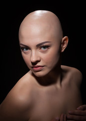 Portrait of a bald girl on a black background.