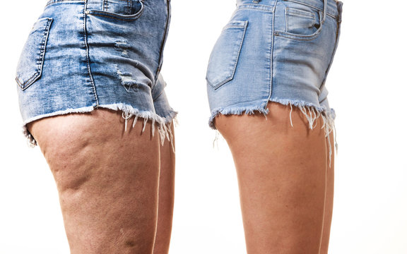 Comparison of legs with and without cellulite