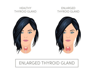Female with normal and enlarged thyroid gland