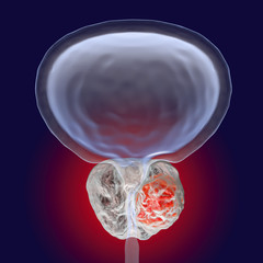 Prostate cancer, 3D illustration showing presence of tumor inside prostate gland which compresses urethra