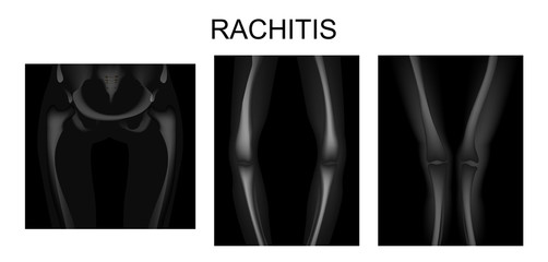 the skeleton of the lower limbs in rickets