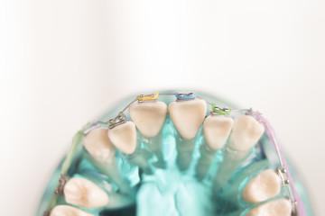 Dental teeth metal brackets