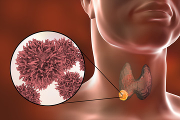 Thyroid cancer. 3D illustration showing thyroid gland with tumor inside human body and closeup view of thyroid cancer cells