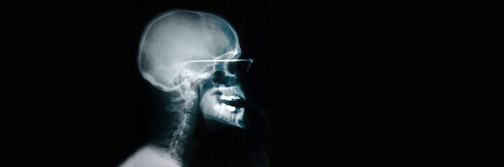 Radiographie du crâne avec lunettes