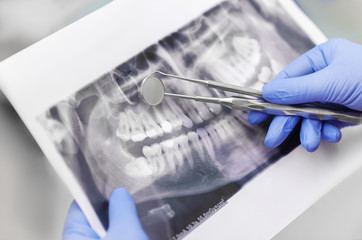 Wall Mural - Close-up of dentist's hands and dental equipment with dental x-ray
