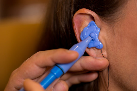 hearing aid acoustician making mold of the ear canal