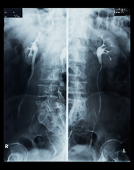 X-Ray of human kidneys with contrast medium