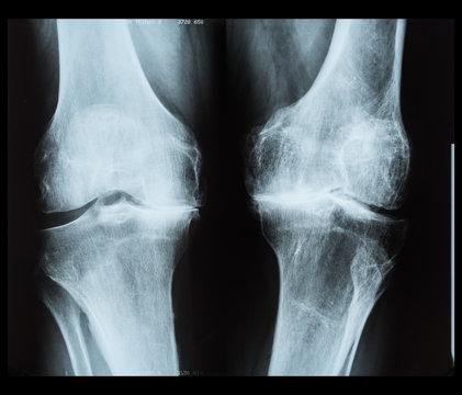 X-ray of human knee