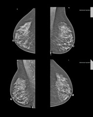 mammography, x-ray photo