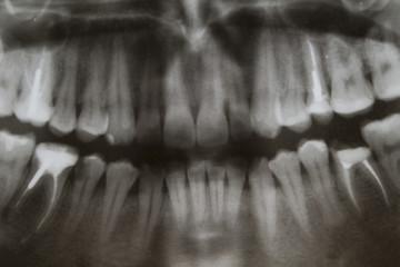 to study an x-ray of teeth