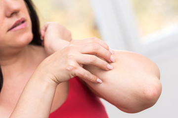 Woman having itchy and scratching her arm