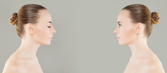 Female Nose Before and After Cosmetic Surgery or Retouch. Rhinoplasty, Beauty and Cosmetology Concept