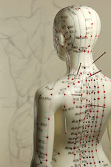 female acupuncture model with needles in the shoulder
