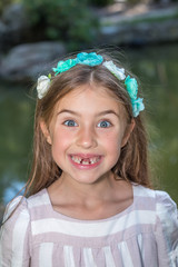 Funny portrait of little girl who lost front teeth. City park in the summer time