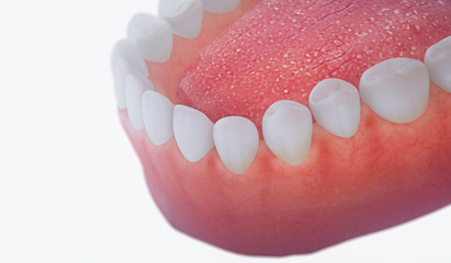 Medical denture,3D teeth close up.