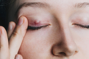 young girl shows a chalazion on the eyelid closeup