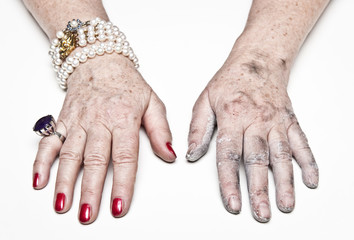 Rich vs. poor hand of mature woman - gap between rich and poor