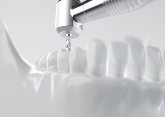 Root treatment with a drill closeup - 3D Rendering