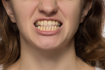 Yellow is not even and crooked teeth of a young woman
