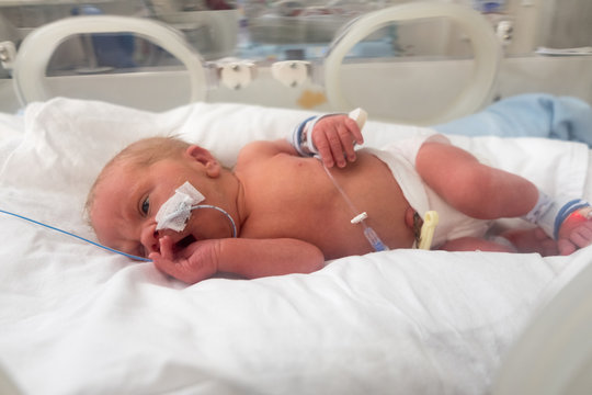 Premature baby being cared for in incubator