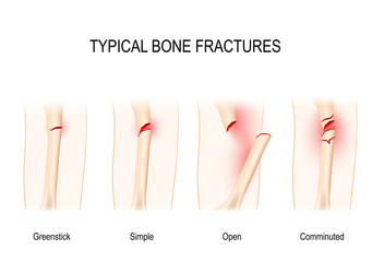 Typical bone fractures.