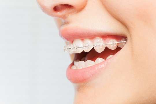 Woman's smile with clear dental braces on teeth