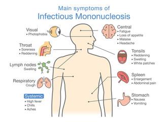 Symptoms of Infectious Mononucleosis disease. Diagram for diagnose patient of doctor.