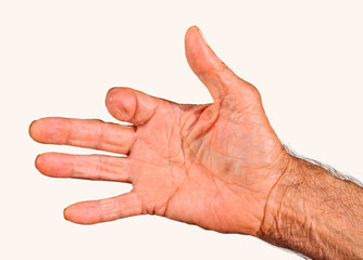Elderly man hand with amputated finger