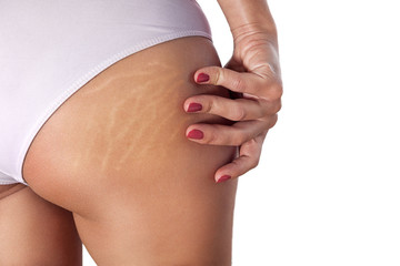 Woman buttocks with stretch marks and cellulite