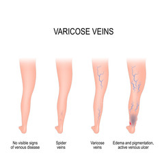 Stages of varicose veins.
