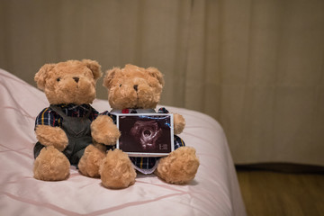 couple teddy bears with baby ultrasound image