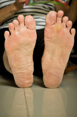 wart under foot