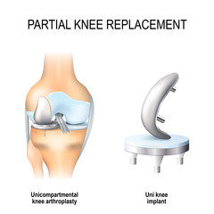 partial knee replacement.