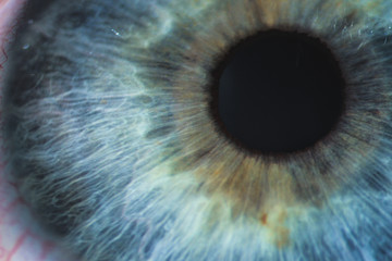 Photo sur Toile Iris An enlarged image of eye with a blue iris, eyelashes and sclera. the shot is made by a slit lamp with a built-in camera
