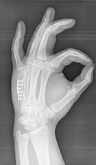 X-ray of human hand. V metacarpal bone with implant.