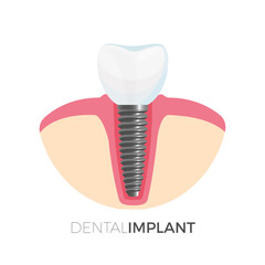 Dental implant poster with image on vector illustration