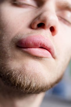 angioedema. Allergic reaction on the lip. Young guy