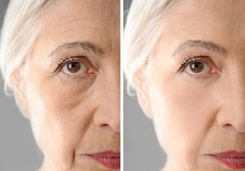 Senior woman before and after biorevitalization procedure, closeup