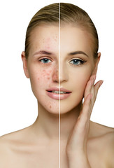 Female face, cut in half present clean perfect skin and acne, skin care concept isolated on white.