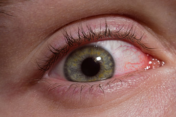 Inflamed sick human eye macro