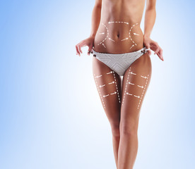 Fat lose, liposuction, sport, fitness, healthy eating, nutrition, fit shape and cellulite removal concept. Woman with arrows on her body.