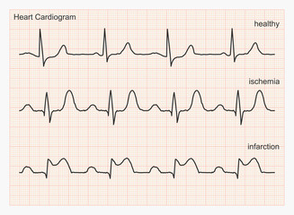 Three types of cardiograms: healthy heart rhythm, ischemia, infarction. Graph paper with ECG graphic line. Vector illustration.