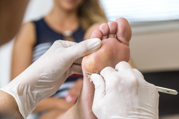 Chiropodist removes skin on a wart with a scalpel on the sole of Foot of a woman